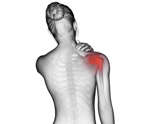 épaule douloureuse remède